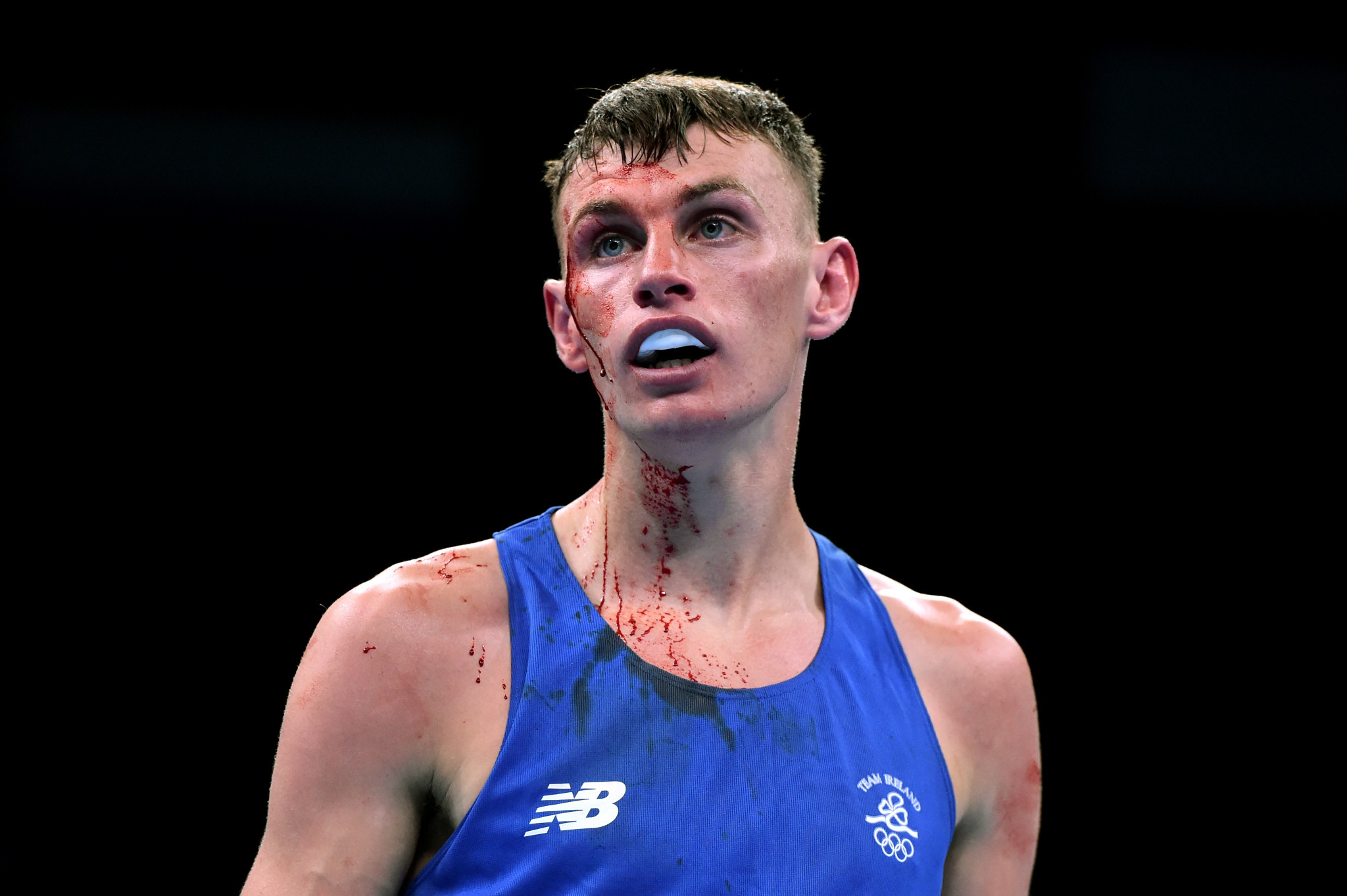 Northern Irish boxer banned from Gold Coast nightspots after fight with bouncer
