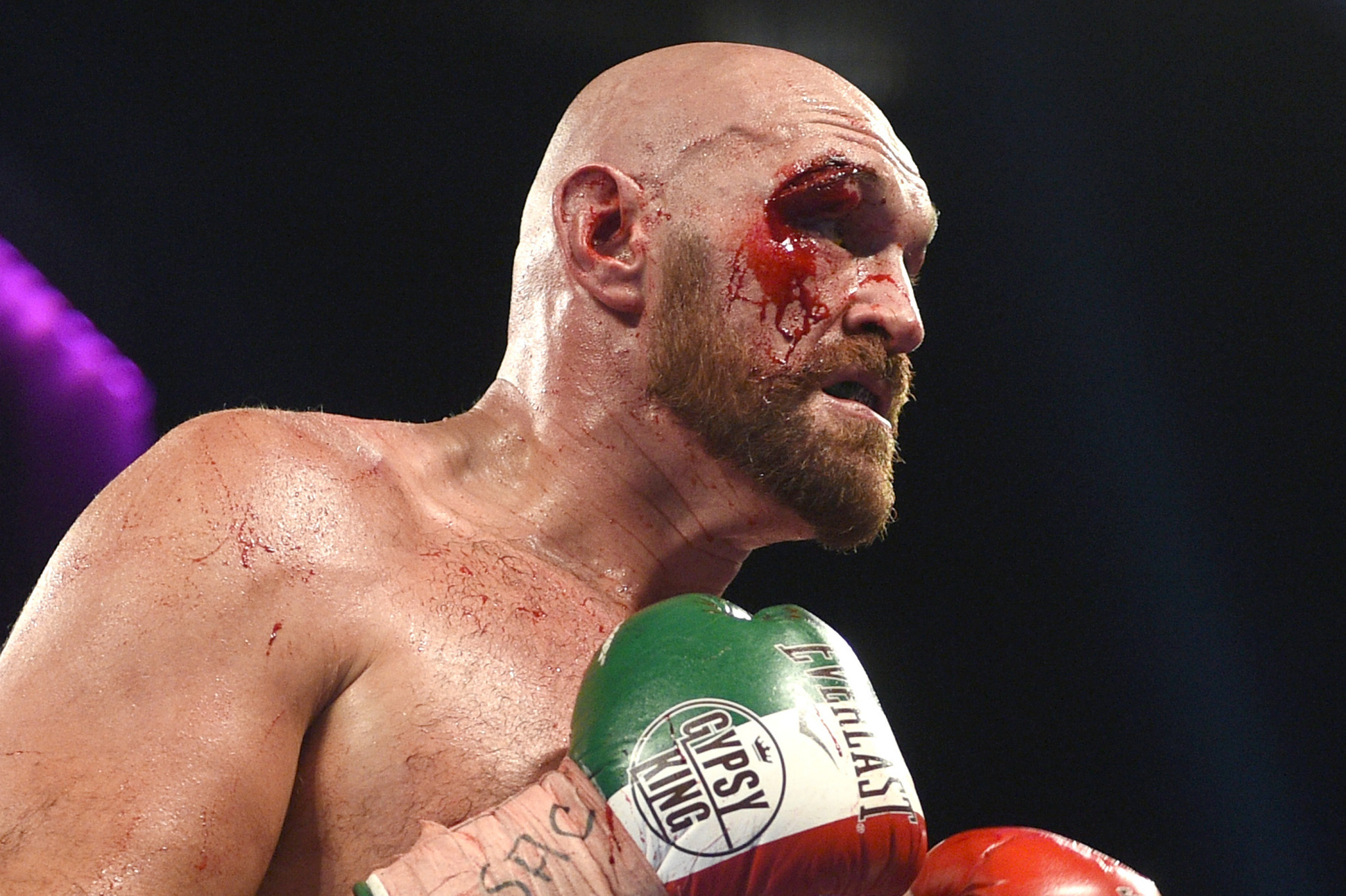 Tyson Fury suffered a deep cut during his fight with Sweden's Otto Wallin last weekend ©Getty Images