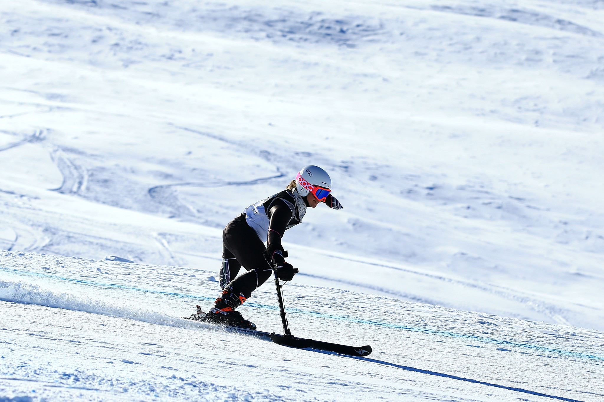 Skier postpones surgery in bid to keep Paralympic bid alive